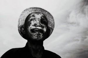 「ハンセン病」の画像検索結果