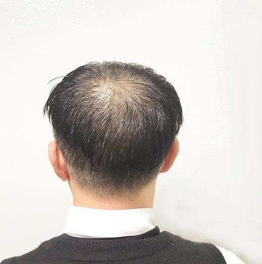 頭頂部 薄毛 画像
